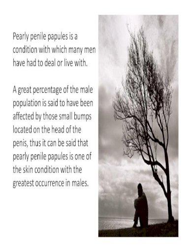 Treatment penile papules natural Remove Your